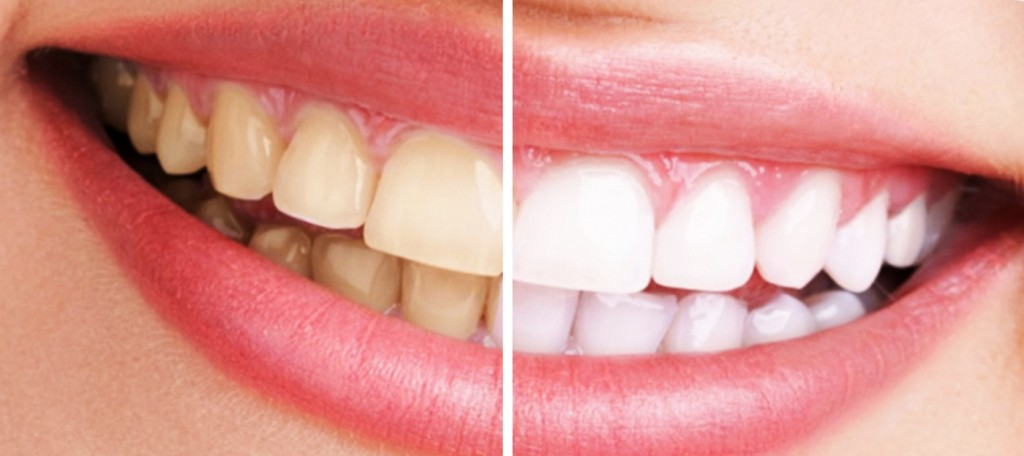 blanqueamiento dental en madrid sonrisa comparacion antes y despues