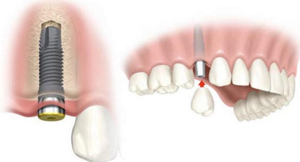 implantes dentales dudas frecuentes