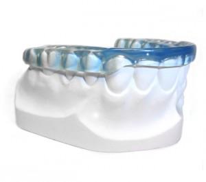 bruxismo tratamiento ferulas enfermedad dental