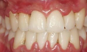 importancia de una buena higiene dental encías inflamadas