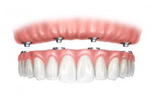 implantes dentales de carga inmediata encías