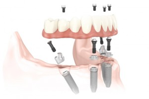 implantes dentales de carga inmediata método