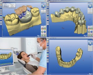 cad cam dental tratamiento