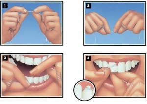 correcto uso del hilo dental