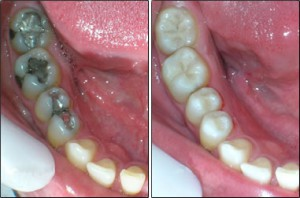 empaste dental ejemplo
