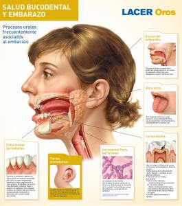 salud dental durante el embarazo problemas dentales