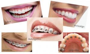 cuidado de brackets tipos ortodoncia