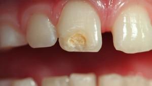 hipoplasia de esmalte diente afectado