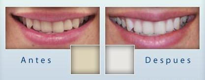 limpieza dental antes y despues