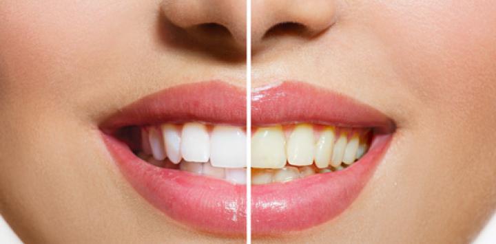 alimentos que ensucian los dientes
