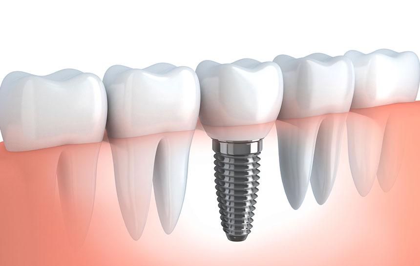 diferencias entre puente dental e implantes dentales