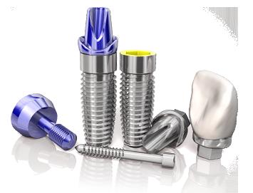 precio de los implantes dentales