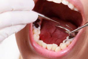 caries enfermedades dentales mas frecuentes