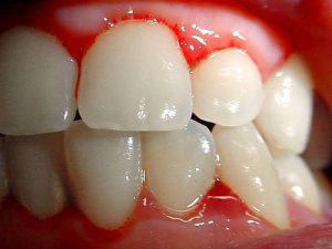 gingivitis enfermedades dentales mas frecuentes
