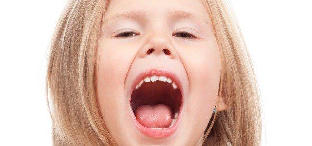 halitosis infantil
