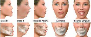 maloclusion enfermedades dentales mas frecuentes