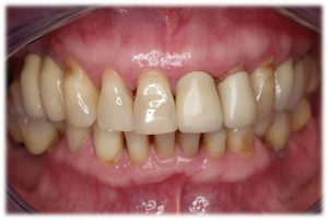 periodontitis enfermedades dentales mas frecuentes