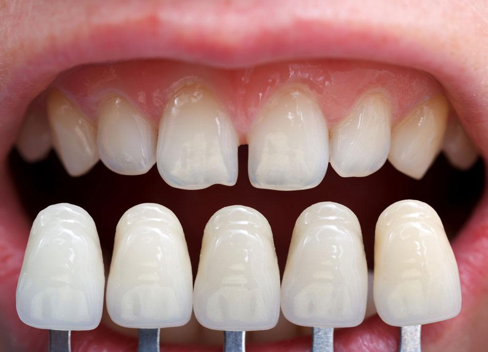 diastema tratamiento carillas dentales