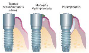 fases de la periimplantitis