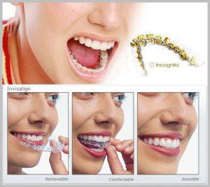 ortodoncia estetica diferencias