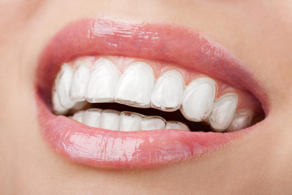 ortodoncia estetica invisalign