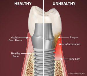 diferencia implante sano y periimplantitis