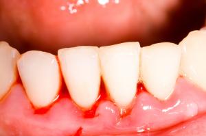 encias retraidas por periodontitis