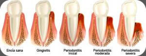 periodontitis causa encias retraidas