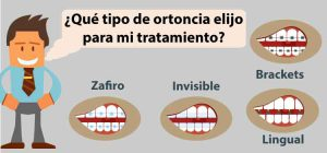 tipos de ortodoncia para maloclusión