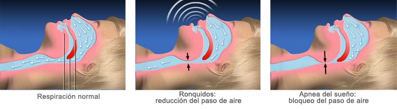 apnea del sueño problemas respiratorios